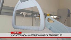 Catania. Viso deformato, ricostruito grazie alle stampanti 3D